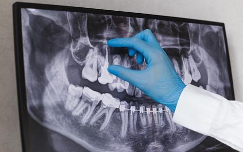 Prothèses dentaires fixes Namur
