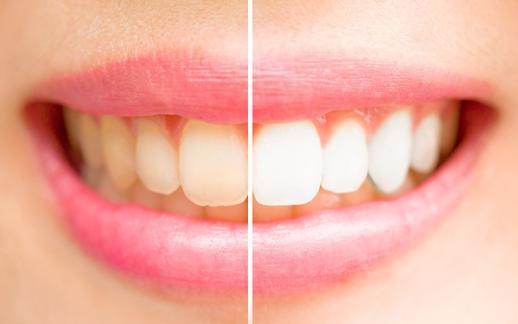 Blanchiment prothèses dentaire Namur