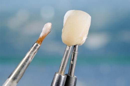 Prothésiste dentaire Namur