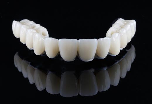 Fabrication prothèses dentaires fixes